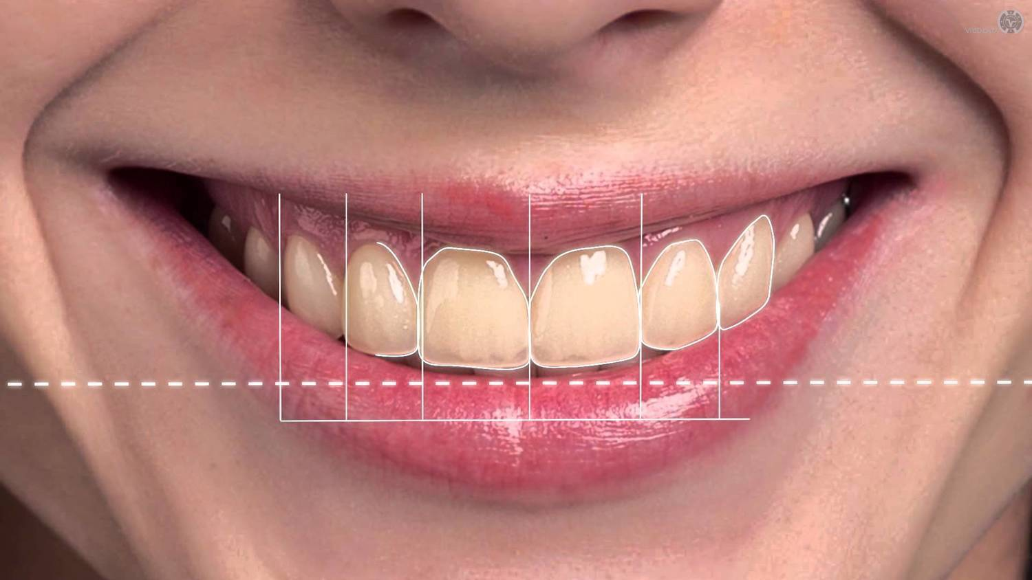 Digital Smile Design Course