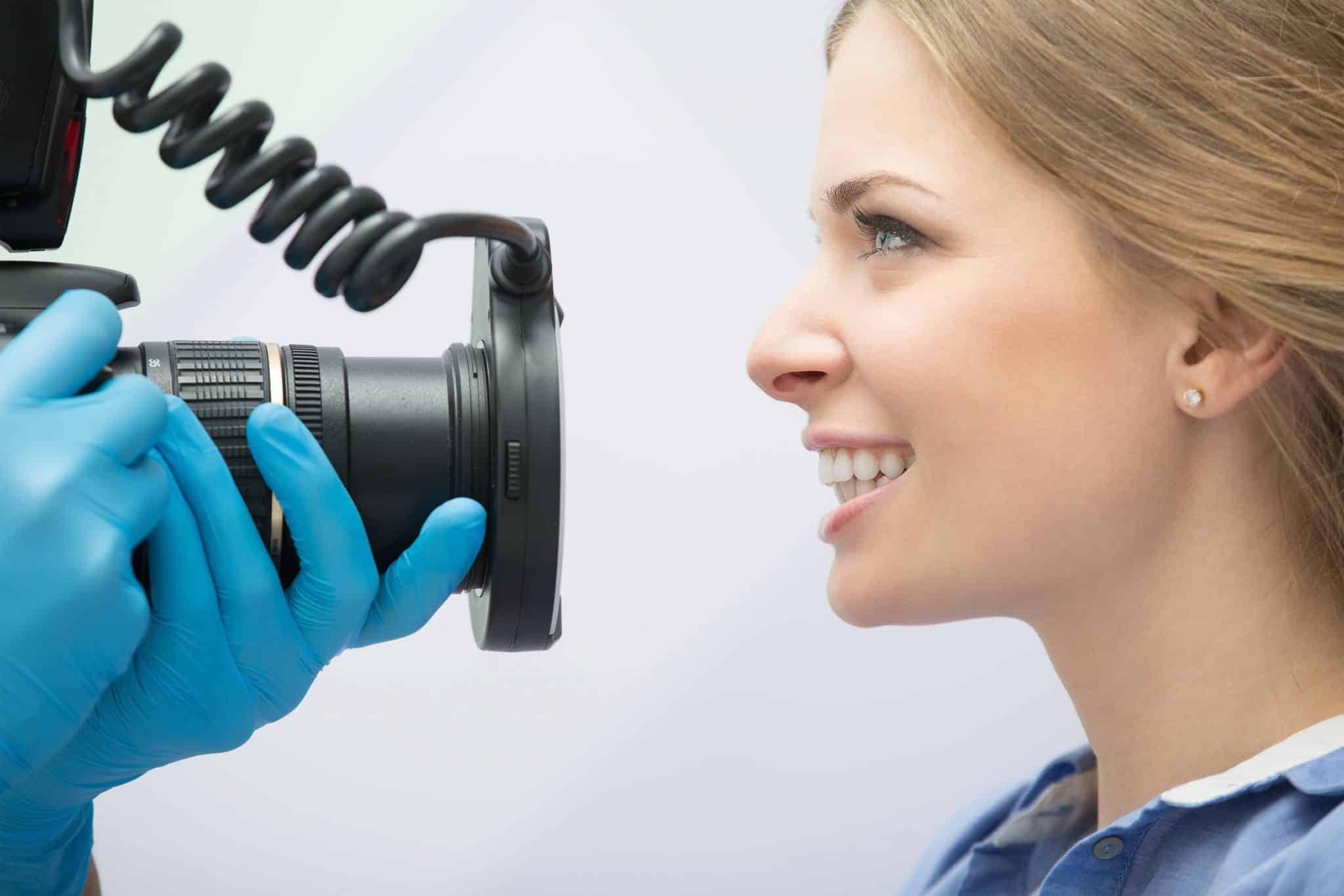 photographing-teeth