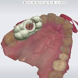 Implant Planning using 3Shape Implant Studio