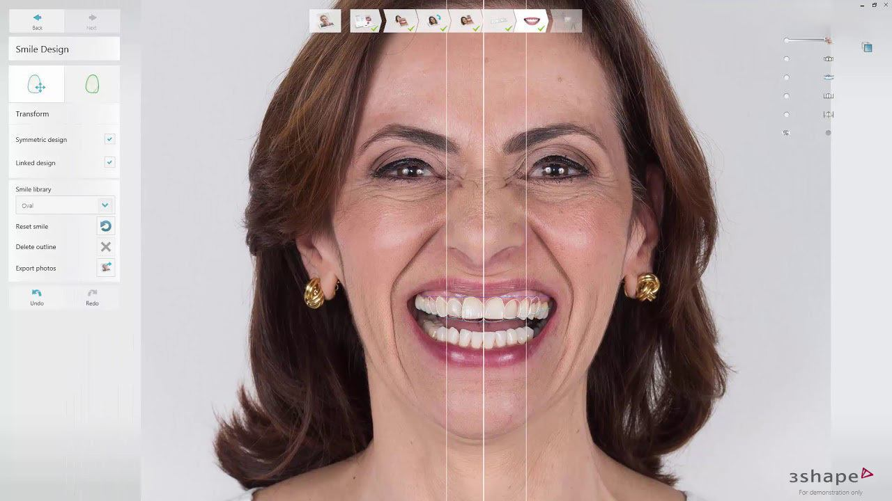 3Shape-TRIOS-smile-design-software-institute-of-digital-dentistry