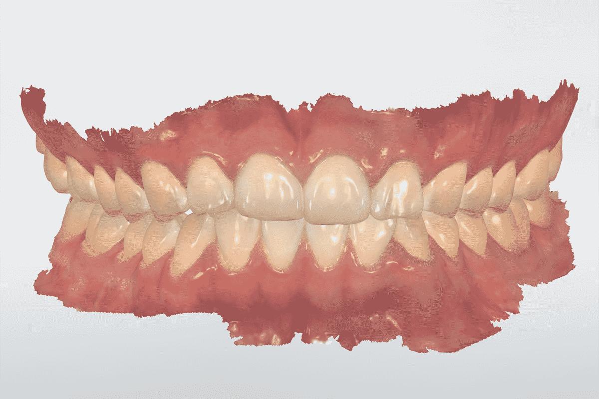 Full-arch-scanning-TRIOS-3SHAPE-TRIOS-4-bite-scan-institute-of-digital-dentistry