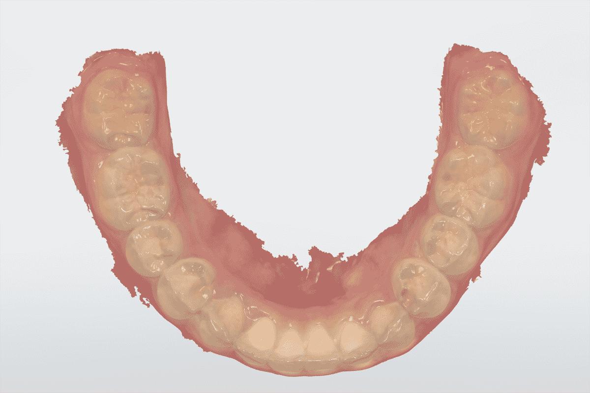 Full-arch-scanning-TRIOS-3SHAPE-TRIOS-4-mandibular-scan-institute-of-digital-dentistry