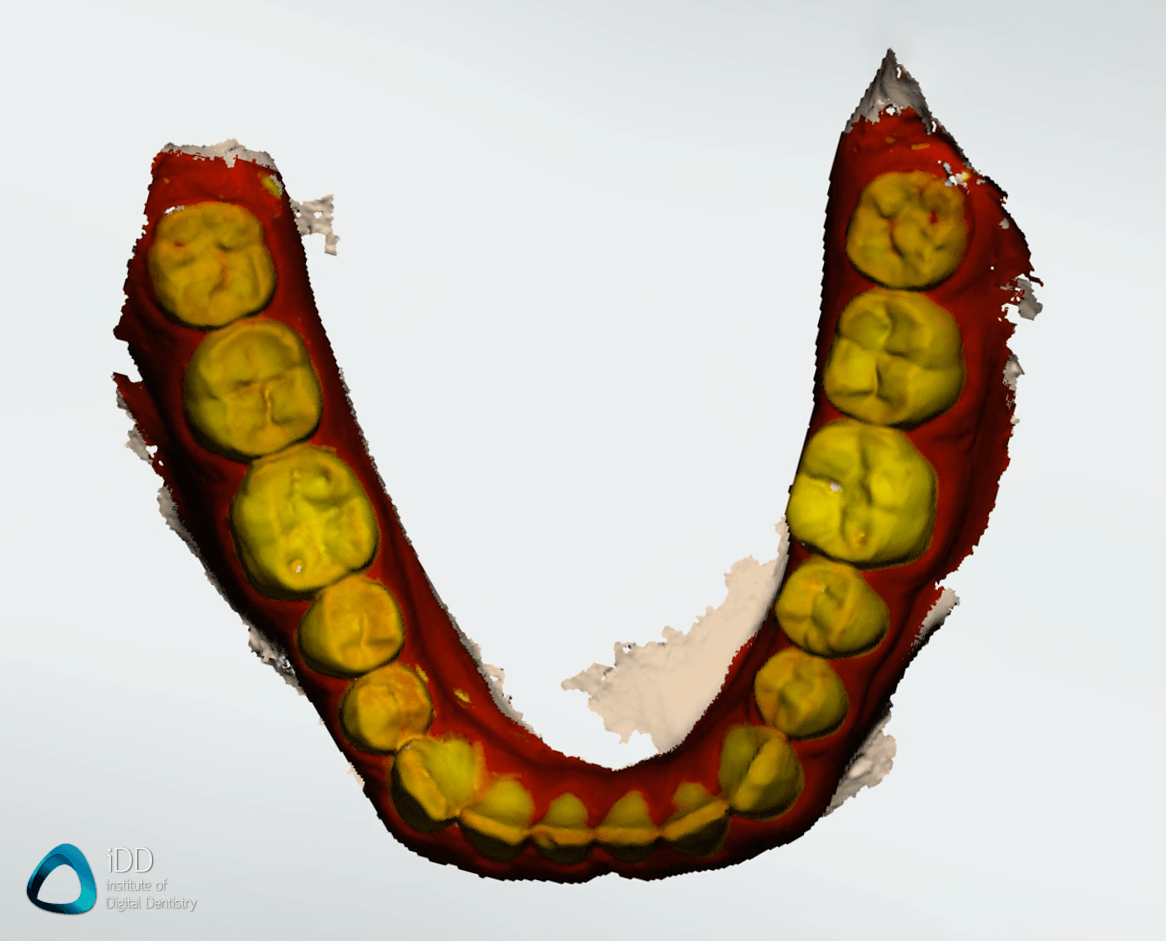 caries-detection-trios-4-function-mandibular-arch-institute-of-digital-dentistry