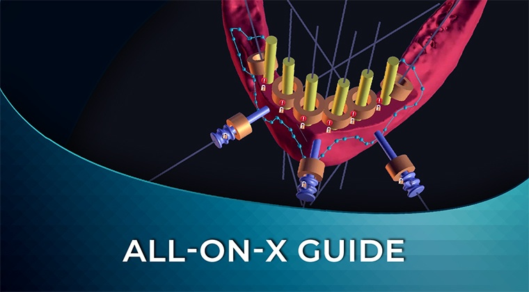 All-on-x guide-institute-of-digital-dentistry-implant-planning-course