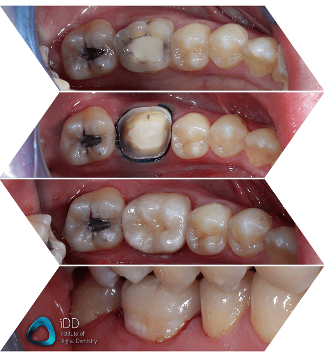emax crown start to finish glazed and stained ivoclar cadcam institute of digital dentistry
