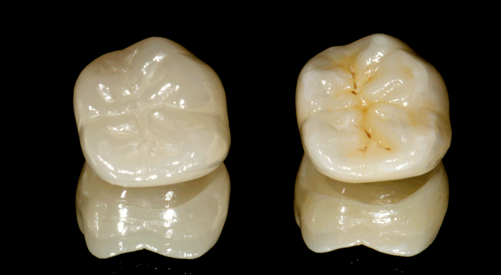 staining and glazing vs polishing restorations two crowns side by side