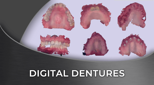 digital dentures online course institute of digital dentistry