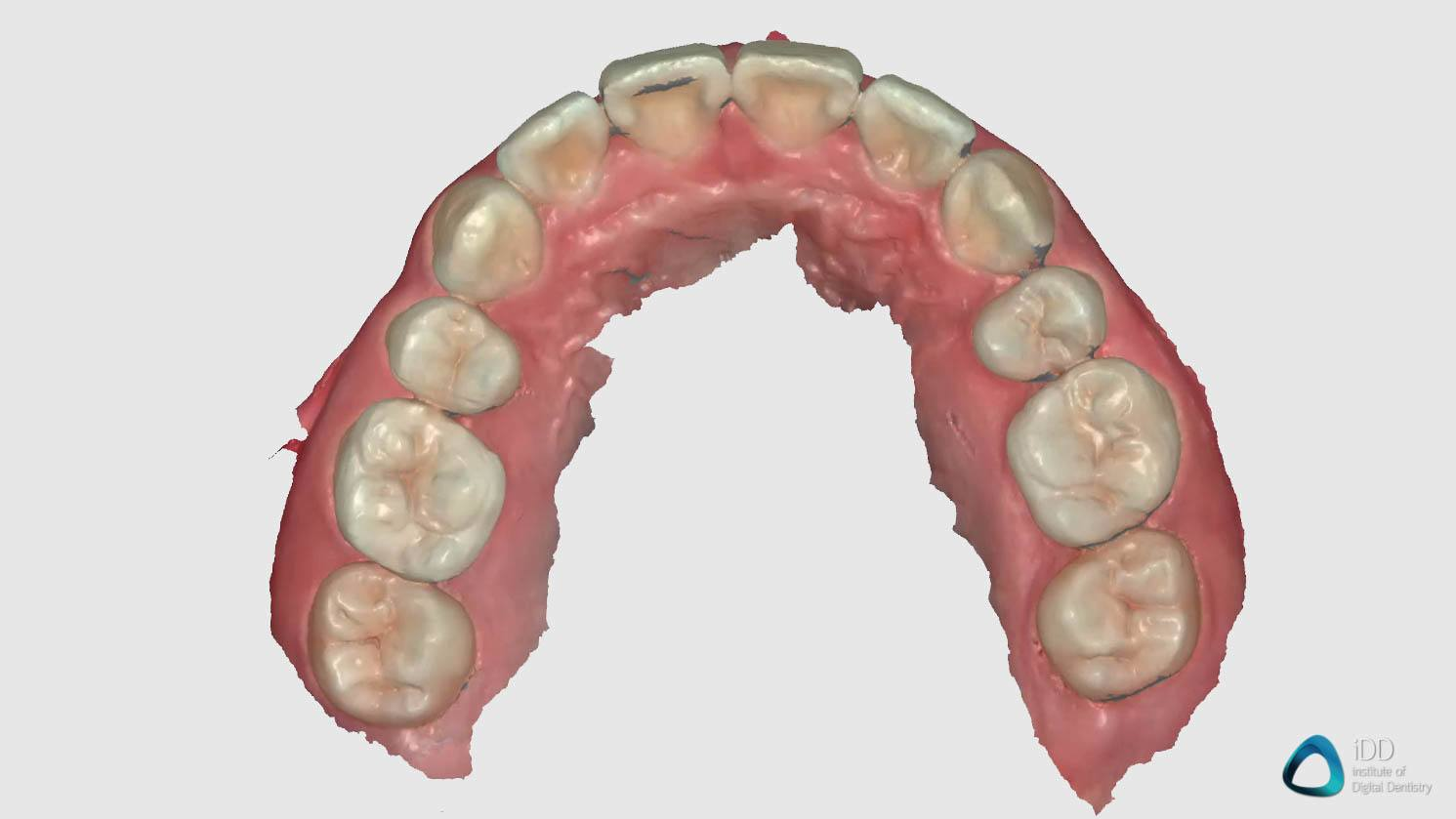 full arch scan runyes 3DS IOS institute of digital dentistry (2)