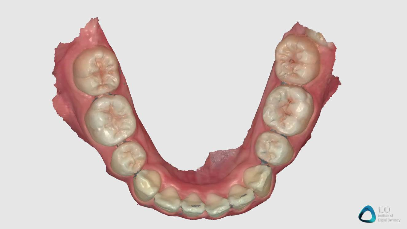 full arch scan runyes 3DS IOS institute of digital dentistry (3)