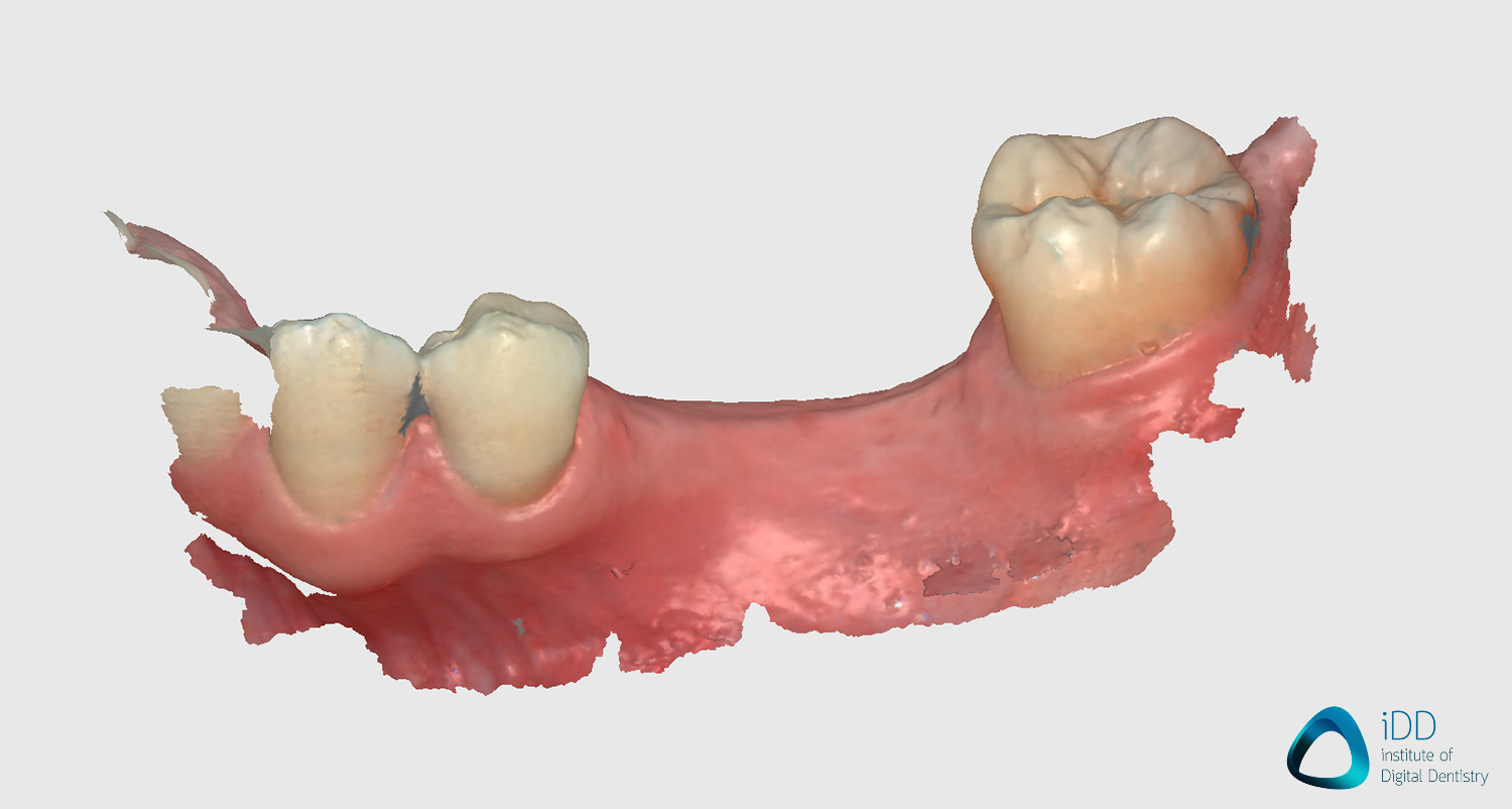 runyes ios scan after processing edentulous scan institute of digital dentistry (2)