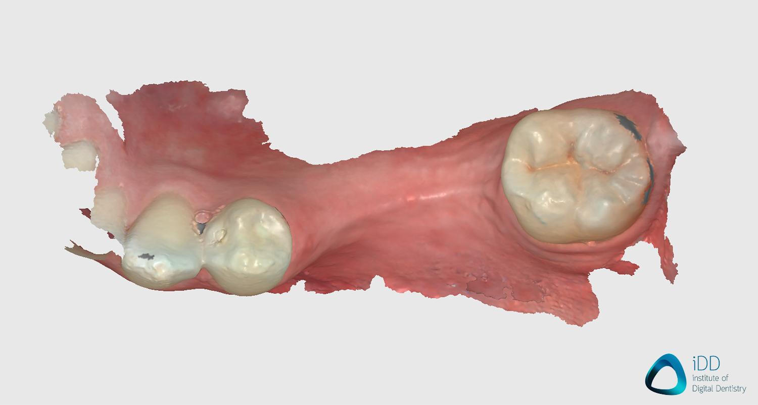 runyes ios scan after processing edentulous scan institute of digital dentistry
