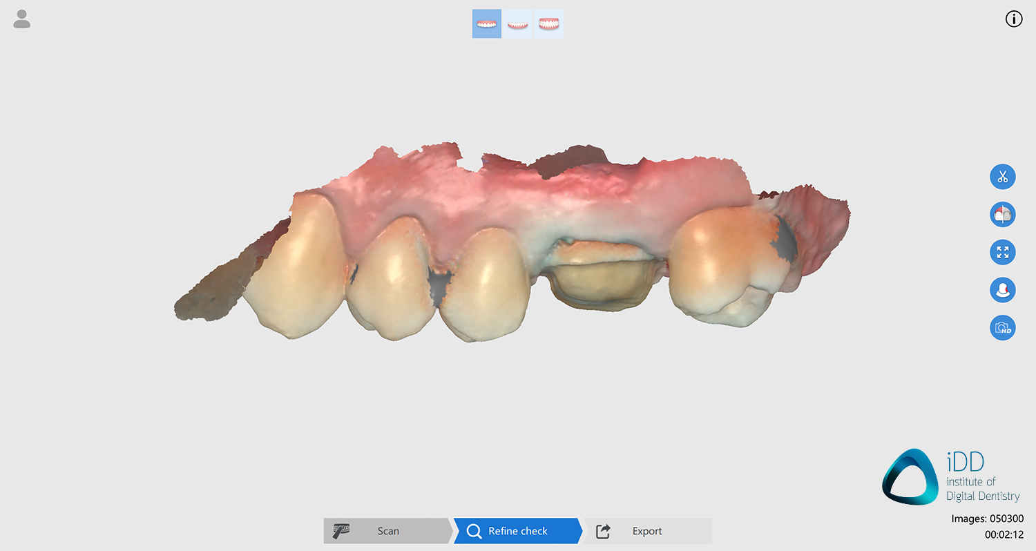 runyes ios scan after processing institute of digital dentistry-2final