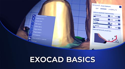 exocad-basics-introductory course-how-to-use-exocad-software-dental-institute-of-digital-dentistry