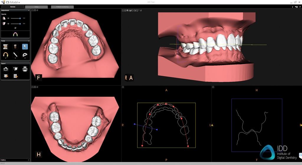 carestream dental cs 3700 model plus software orthodontic simulation institute of digital dentistry 1
