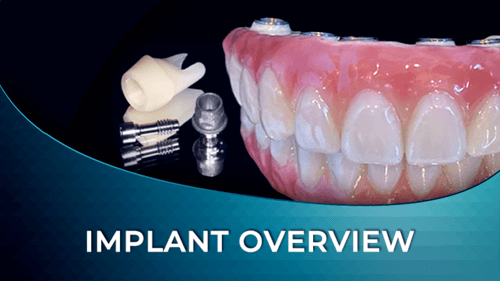 implant overview online course