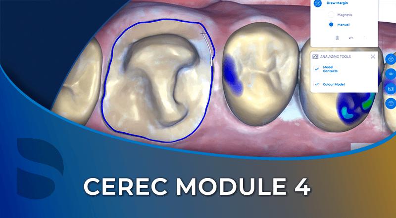 CEREC Module 4