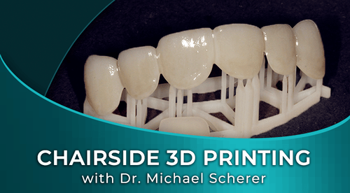 CHAIRSIDE 3D PRINTING FOR DENTISTS