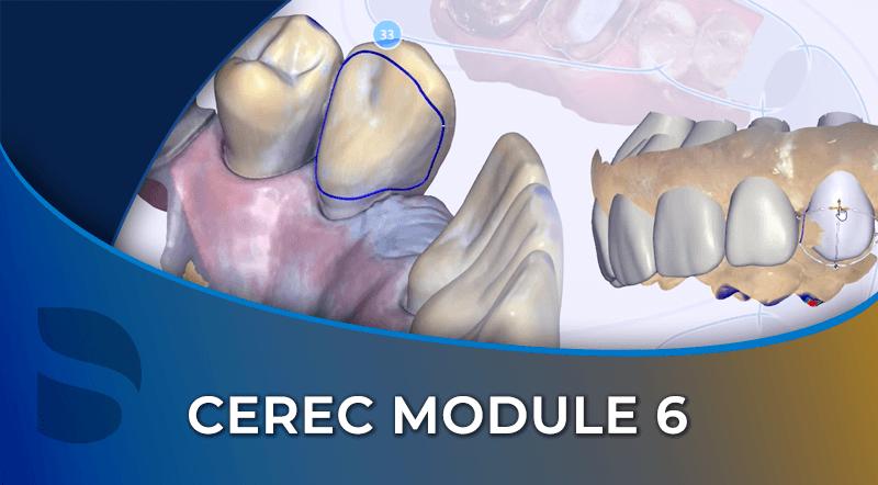 CEREC Module 6
