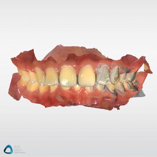 CEREC Primescan scan example review (3)