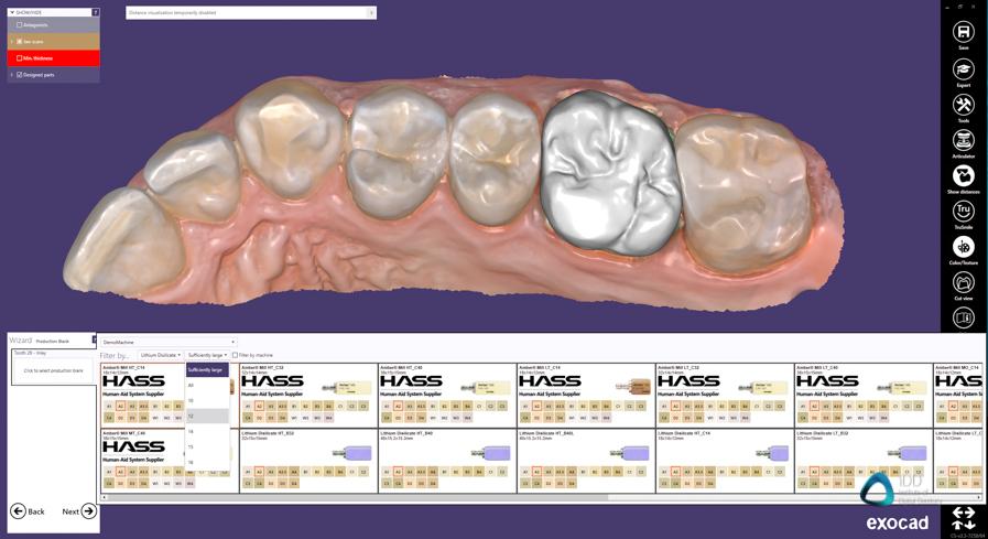 exocad crown workflow institute of digital dentistry (3)