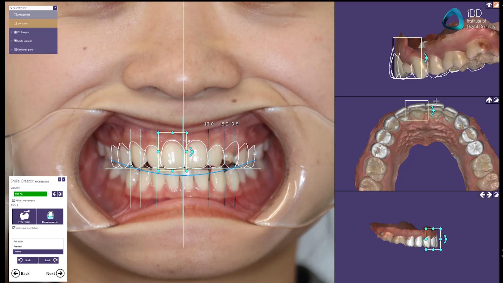 exocad smile creator software digital smile design institute of digital dentistry