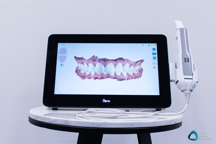 itero_element_5D_plus_intraoral_scanner_review_institute_of_digital_dentistry (35)