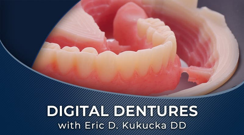 KCvUjnTVRKWaqb044YLS_Digital Dentures - workflow by Kukucka